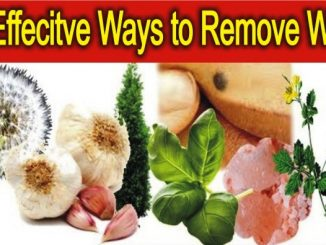 Ways to Remove Warts