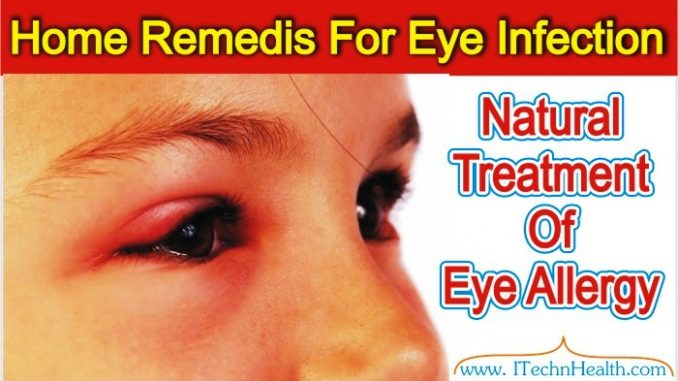 Easy Home Remedies For Eye Infection Treatment of Conjunctivitis