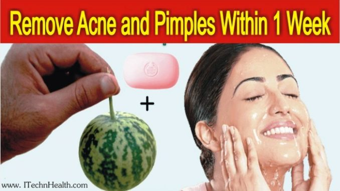 Herbal Remedy To Remove Acne and Pimples Within One Week
