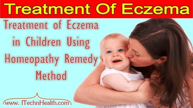 Homeopathy Treatment of Eczema - Tuberculinum Bovinum