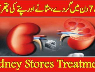 kidney stone treatment in urdu