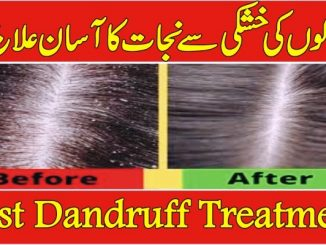 Dandruff Treatment In Urdu