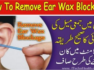 How to Remove Ear Wax Blockage Fast, Kan Me Dard Ka Ilaj In Urdu