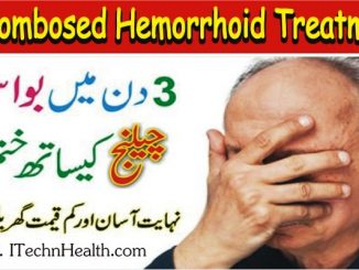 Thrombosed Hemorrhoid Treatment without Sitz Bath