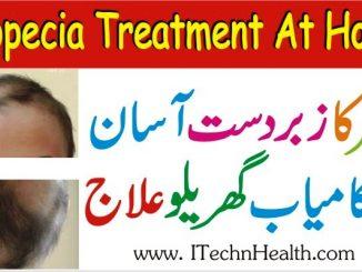 Alopecia Treatment At Home, Balchar Home Remedies In Urdu