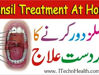 Tonsil Treatment At Home, Tonsils Ka Ilaj Ubqari